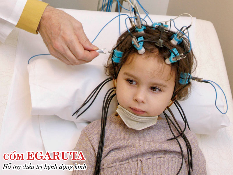 Điện não đồ là xét nghiệm quan trọng nhất giúp chẩn đoán động kinh ở trẻ em